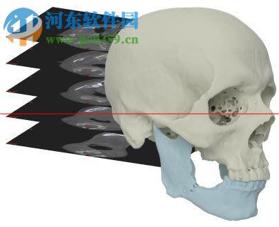 mimics下载 (医学图像处理软件)  附安装教程 17.0 中文破解版