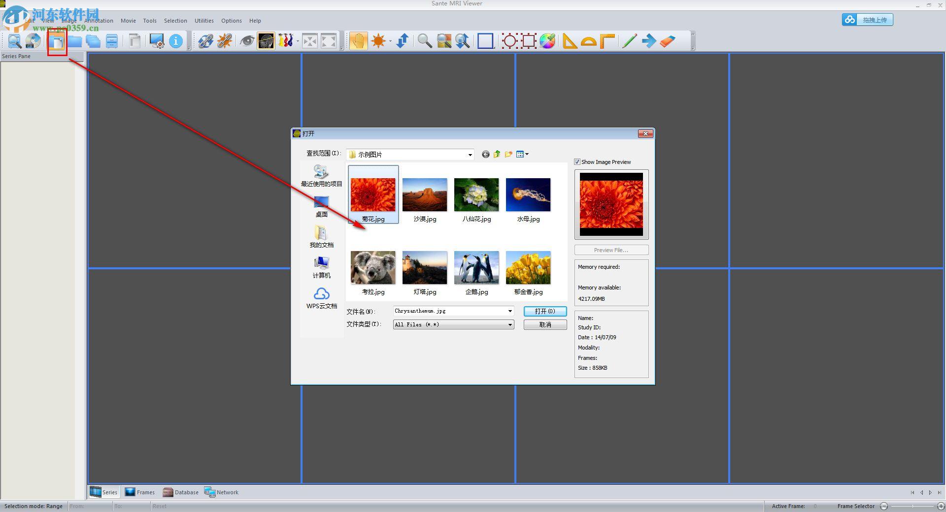 Sante CT Viewer(CT查看软件) 2.2 官方版